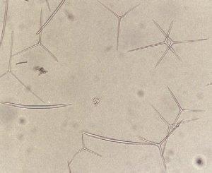 Espículas microscópicas (parecem pequenas agulhas)