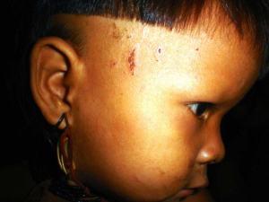 As crianças são mais sensíveis porque têm sono mais profundo. Imagem em http://cienciahoje.uol.com.br/noticias/2013/09/dormindo-com-o-inimigo